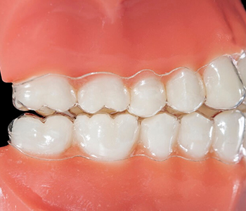 Clear braces are an affordable way to straighten teeth