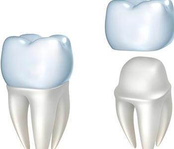 Richmond, VA, dentist explains the cost and considerations of CEREC crown restoration