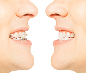 Charlottesville dentist offers alternative to metal braces with clear Invisalign braces