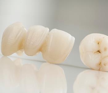 Richmond area dentist explains dental bridges