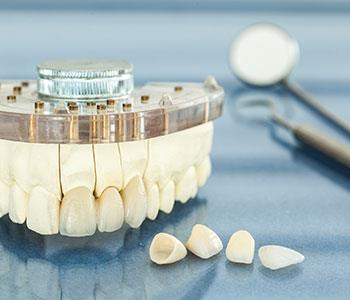A guide to dental crowns and bridges in Charlottesville