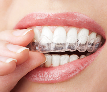 "Richmond residents ask, ""How does Invisalign treatment work?"""
