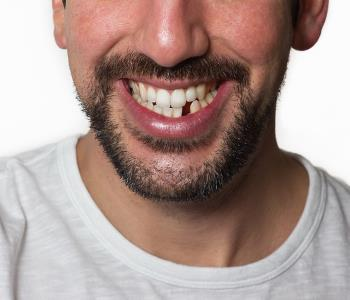 A Richmond dentist can replace a missing tooth to restore the function and beauty of your smile