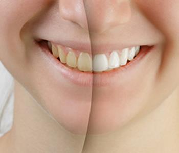 Teeth Whitening Cost Richmond Affordable Teeth Whitening Richmond