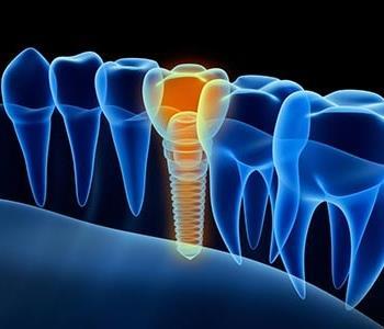 Richmond, VA, dentist explains the benefits of zirconia dental implants