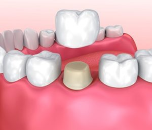 Same Day Dental Crowns