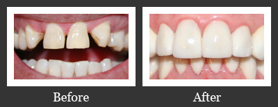 Before and After Porcelain Veneers and Crowns