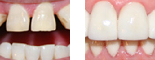 Before after Porcelain Veneers and Crowns