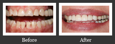 Smile Gallery Richmond - Crowns And Laminates Before And After