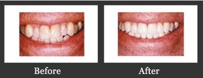 Smile Gallery Richmond - Bleaching Before And After