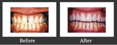 Smile Gallery Richmond - Porcelain Veneers Before And After