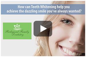 Teeth Whitening Fredericksburg VA - Teeth Whitening Video